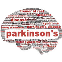 Image of the brain -parkinson's disease